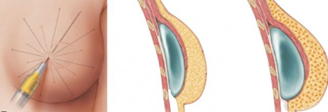 Fat grafting breast reconstruction, Phi Plastic Surgery, photo 2 breast needle