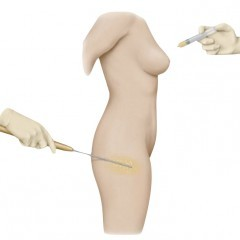 Fat grafting breast reconstruction, Phi Plastic surgery, photo needle thigh