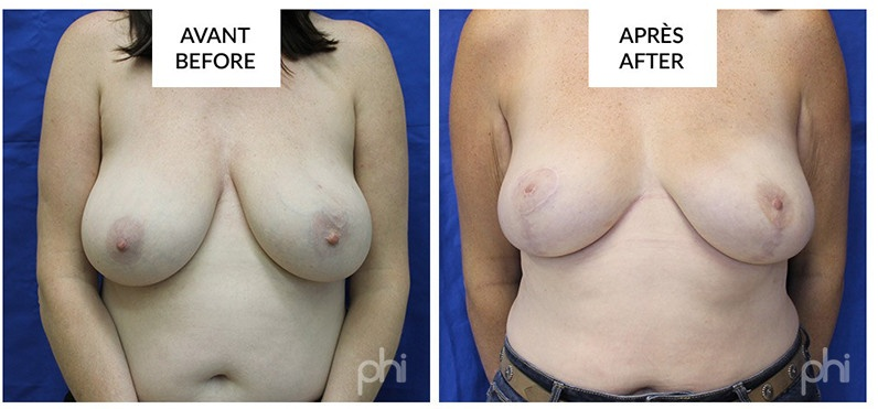 2 stages implants reconstruction montreal