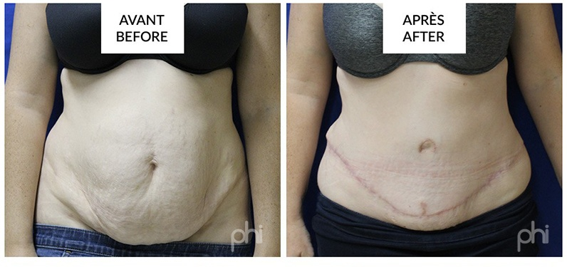 Abdominoplasty Tummy Tuck before and after photos (1)
