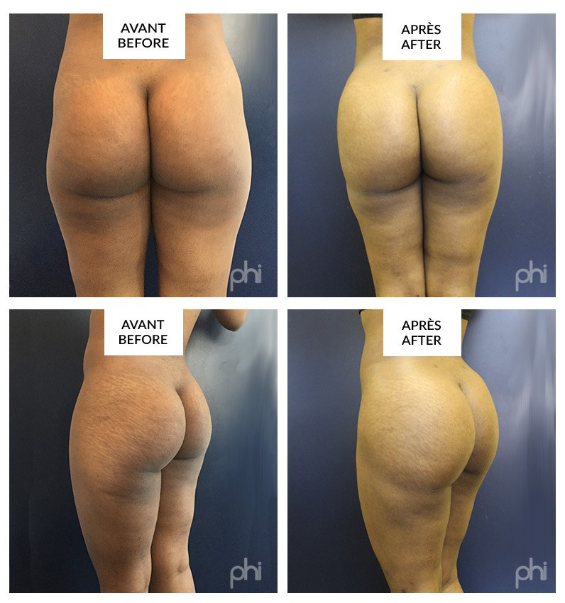BUTTOCK AUGMENTATION WITH FAT GRAFTING (BRAZILIAN BUTTLIFT) montreal