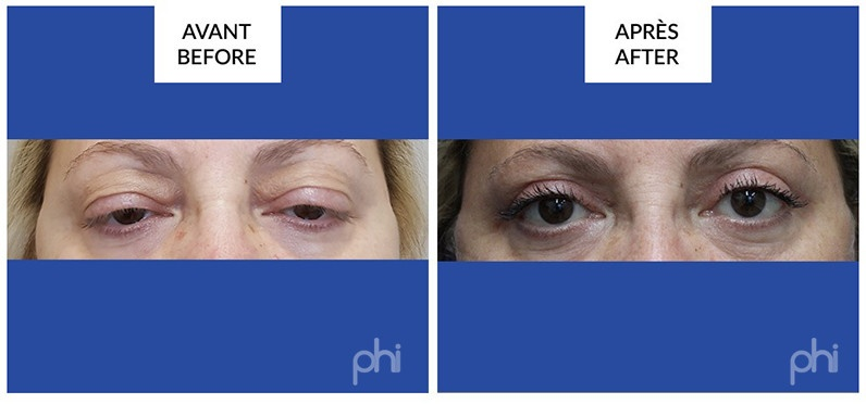 Blepharoplasty before after montreal