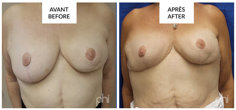 Lumpectomy before after montreal