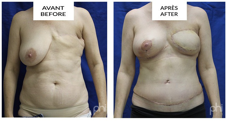 diep-breast-reduction-augmentation-lift-mastopexy-reconstruction