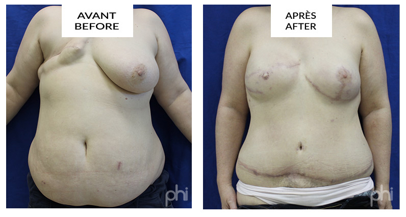 diep-breast-reduction-augmentation-lift-mastopexy-reconstruction (24)