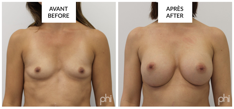 Breast Augmentation before after montreal (2)