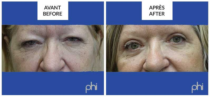 best blepharoplasty surgery in montreal before and after phi surgery