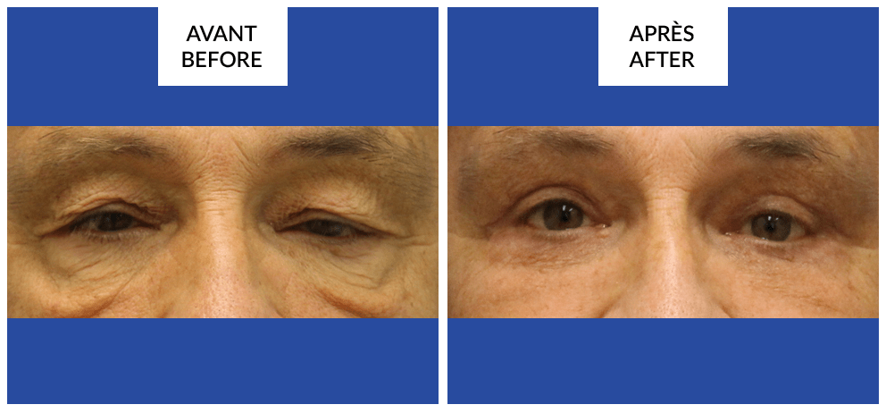 montreal blepharoplasty surgery before and after phi surgery